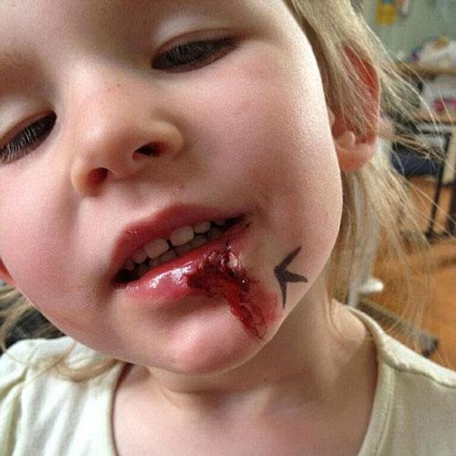 vết rách trên môi của Olivia Farnsworth sau khi bị ngã nhưng cô bé không cảm thấy đau