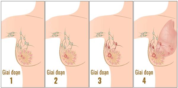 Giai đoạn của ung thư vú