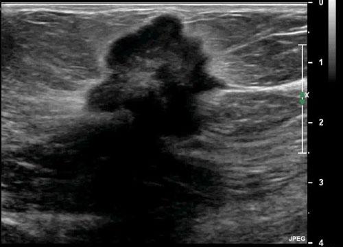 Hình ảnh siêu âm của ung thư vú