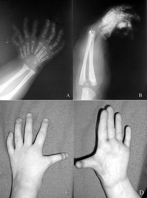 Điều trị hội chứng bàn tay soi gương