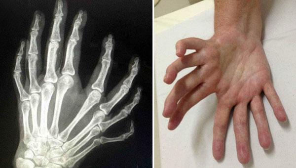 Hội chứng bàn tay soi gương