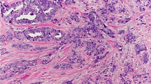 Hình ảnh các tế bào ung thư vú thể ống tuyến xâm nhập