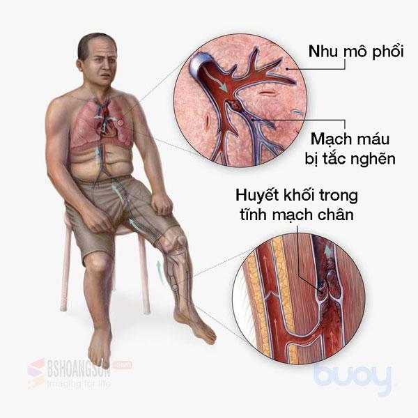 nhồi máu phổi do huyết khối tính mạch chi dưới