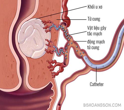 Phương pháp nút mạch khối u